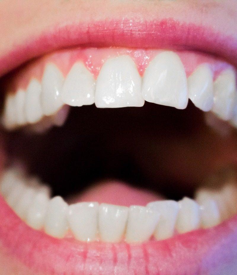 Nowoczesna technologia stosowana w salonach stomatologii estetycznej być może spowodować, że odbierzemy ładny uśmiech.